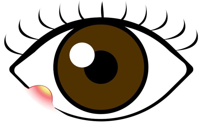 瞼の腫れでお悩みの方必見!ものもらいの治療をご紹介