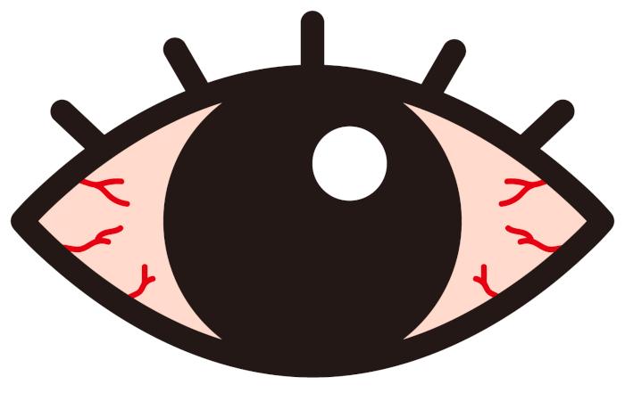 目の充血が治らない!その原因と対処法をご紹介!
