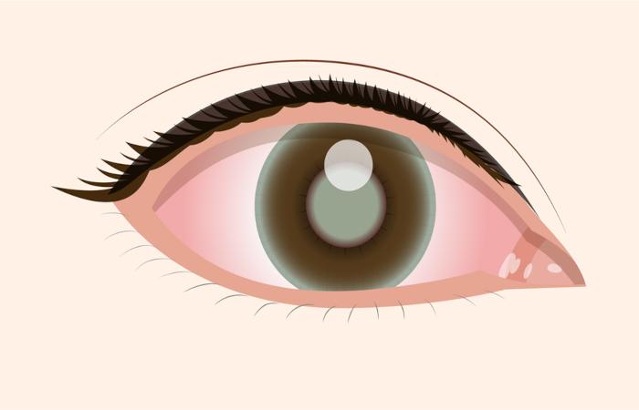 失明率が高い緑内障、知っておきたいその原因と予防法をご紹介!